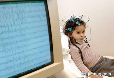 سکته مغزی در اطفال و دلیل آن