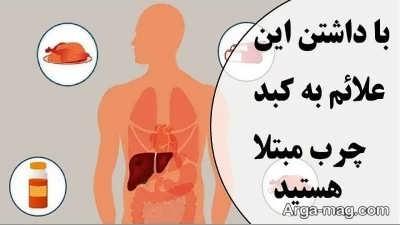علایم بیماری کبد چرب