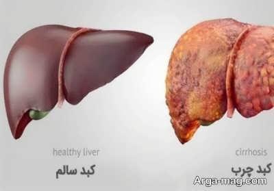 میو و سبزیجات مفید برای درمان کبد چرب