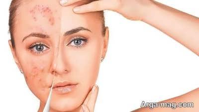 علت ایجاد جوش بر روی صورت