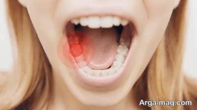 انواع روش های درمان خانگی دندان درد