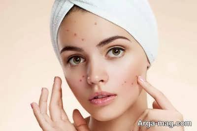 عوارض بند انداختن صورت برای پوست
