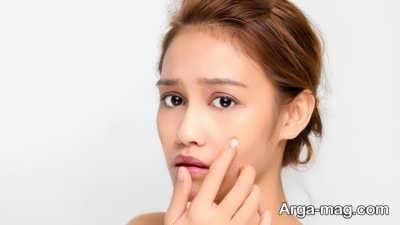 تاثیر جوش در از بین رفتن زیبایی پوست صورت