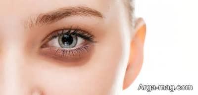 تاثیر پف زیر چشم بر از بین رفتن زیبایی پوست
