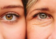 جوانسازی پوست دور چشم