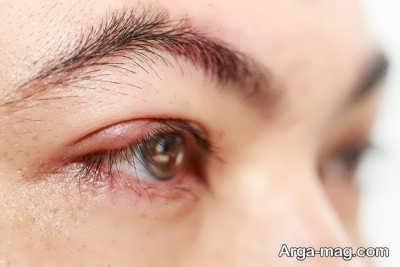 نشانه های بیماری بلفاریت