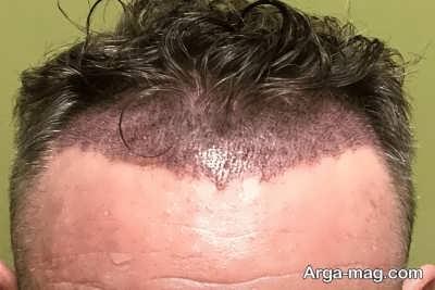 عواقبی که پس از عمل کاشت مو بروز می دهد