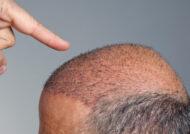 آشنایی با عوارض کاشت مو
