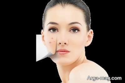 استفاده از جعفری برای کاهش لکه های پوستی