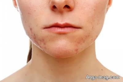 علت ایجاد لک های قهوه ای روی پوست