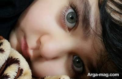 سندروم پرنسس کوچک در بچه های مدلینگ