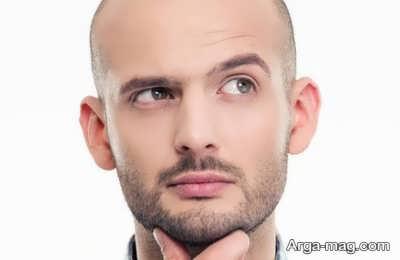 روش های شستن سر بعد کاشت مو