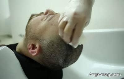 شستن سر بعد کاشت مو