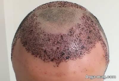 شستن سر بعد از کاشت مو