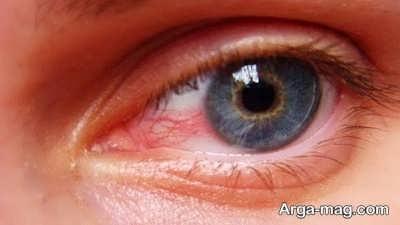 معرفی بیماری های چشم