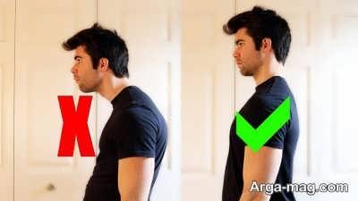 ایستادن نا مناسب منجر به ایجاد مشکلات مفصلی می شود