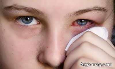 عوارض آبریزش چشم ها