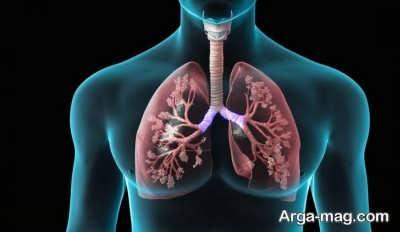تاثیر پنومونی در بروز اختلال سوزش سینه