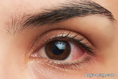 پیشگیری نمودن از خستگی چشم