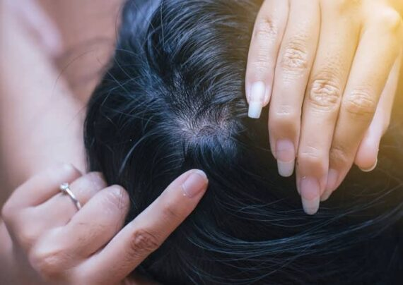 درمان زخم پوست سر