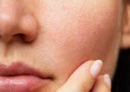 معرفی روش های کوچک کردن منافذ باز پوست