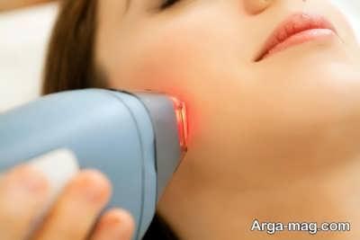 انجام لیزر درمانی برای رفع جوش