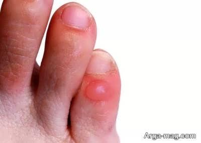 درمان برای عفونت انگشت پا