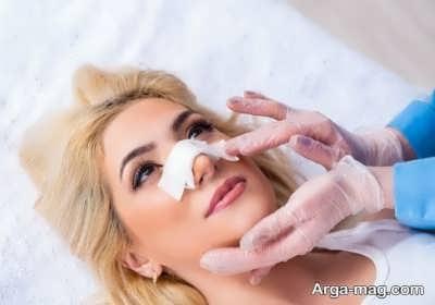 روش های کاهش تورم بعد از عمل بینی