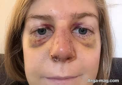 کاهش ورم بعد از عمل کردن بینی