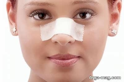 کاهش دادن تورم بعد از عمل کردن بینی
