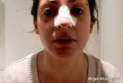 کاهش تورم بعد از انجام عمل بینی