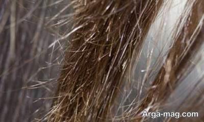استفاده نا مناسب از شامپو می تواند دلیلی برای آسیب دیدن مو ها باشد.