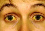 درمان زردی چشم
