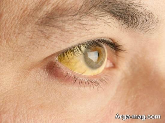 شیر بز یکی از راه خای درمان زرد شدن چشم ها است.