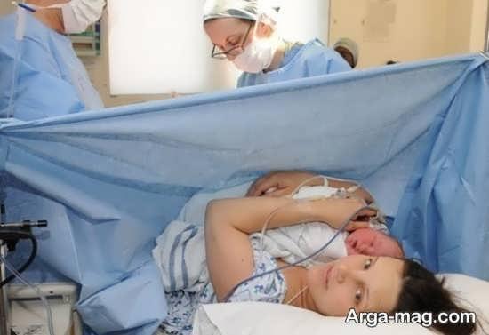 نکات پزشکی مهم پس از عمل سزارین