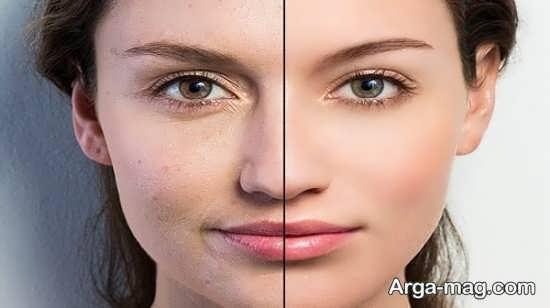 انواع ورزش مفید برای سالم سازی پوست