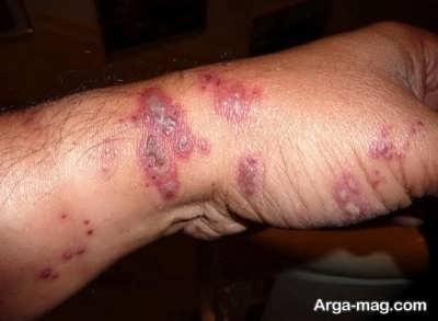 انواع علائم بیماری طاعون