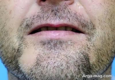 راه معالجه ریزش ریش