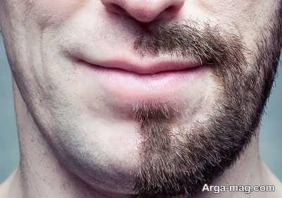 بهبود و معالجه ریزش ریش