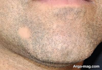 درمان برای ریزش ریش