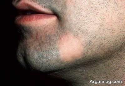 علاج برای ریزش ریش