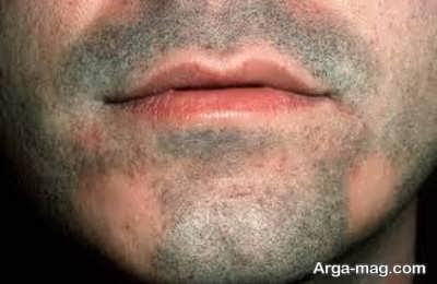شفا و بهبود ریزش ریش