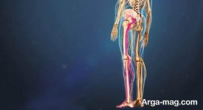 انتشار درد سیاتیک در بدن