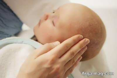 نشانه های ریزش پوست سر نوزاد