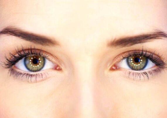 دانه های چربی زیر چشم