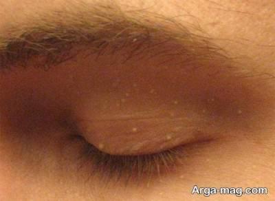 درمان دانه های چربی