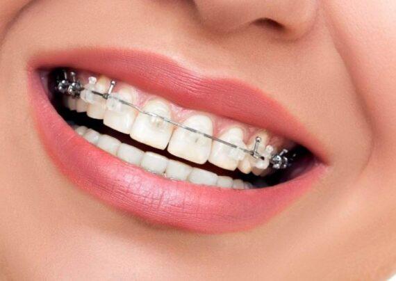 مراحل سیم کشی دندان