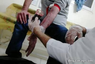 درمان با فصد خون