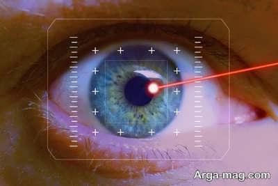 نمره چشم برای جراحی لیزیک