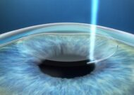 عمل فمتولیزیک چشم